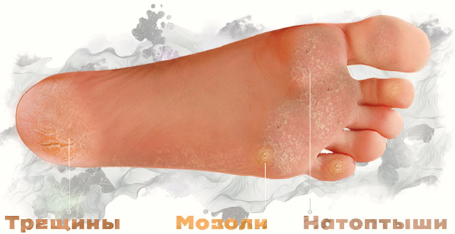 Педикюрные носочки удаляют все эти дефекты и кожа ступней постепенно становится гладкой, мягкой и приятной на вид.